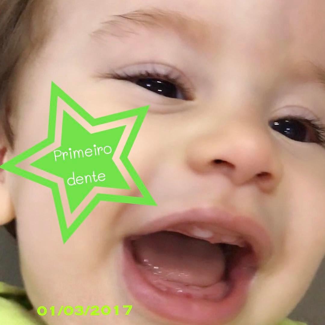 primeiro dente do bebê